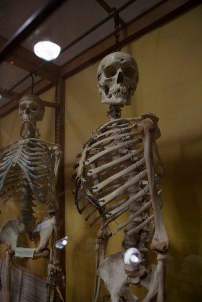 Squelettes de criminels étudiés par Edmond Lorcard - Johann Trompat